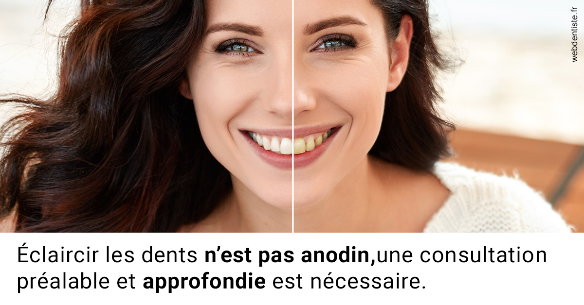 https://dr-maxime-collangettes.chirurgiens-dentistes.fr/Le blanchiment 2